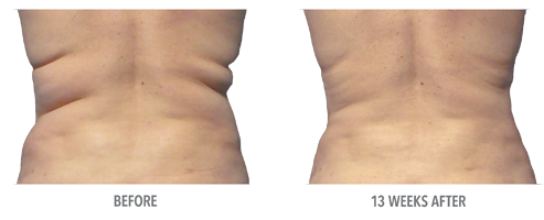 coolsculpting_home_before_after_pic